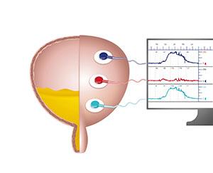prueba diagnóstica de la vejiga, cistometría