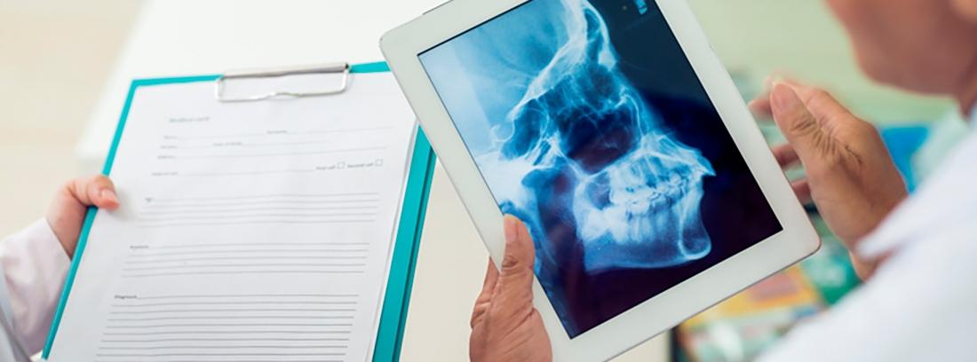 radiografía de dentadura