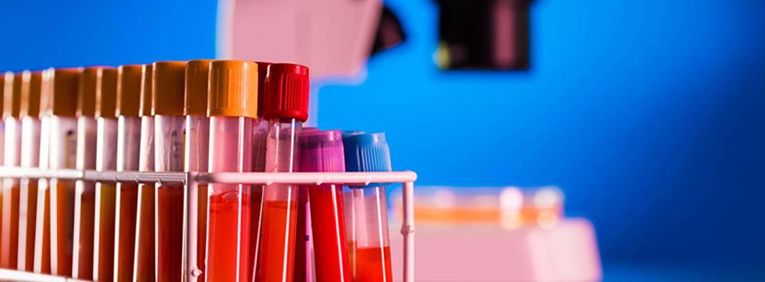 Pruebas diagnosticas laboratorio análisis de sangre - canalSALUD