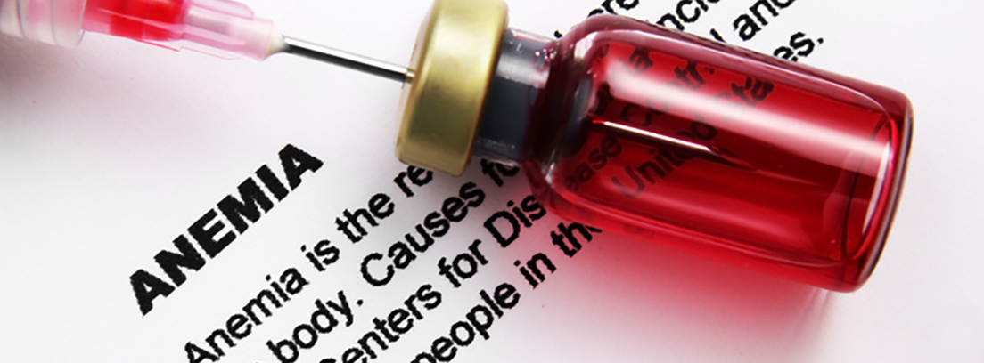 Anemia megaloblástica - canalSALUD