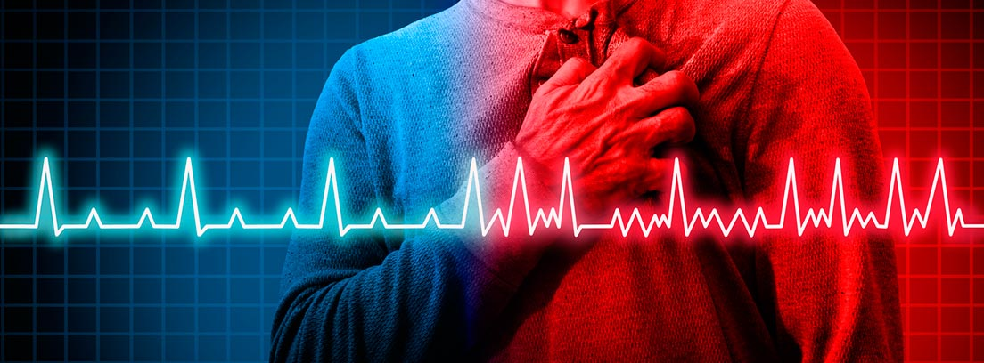 Arritimas cardíacas: Trastorno cardíaco