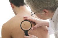 Doctor revisando un lunar melanoma