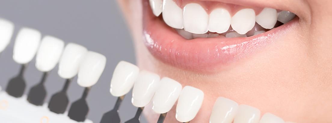 el color de los dientes de qué depende