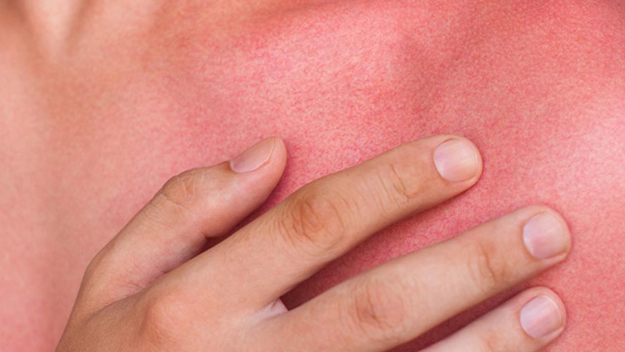 Lesiones y enfermedades en la piel por radiaciones solares - canalSALUD