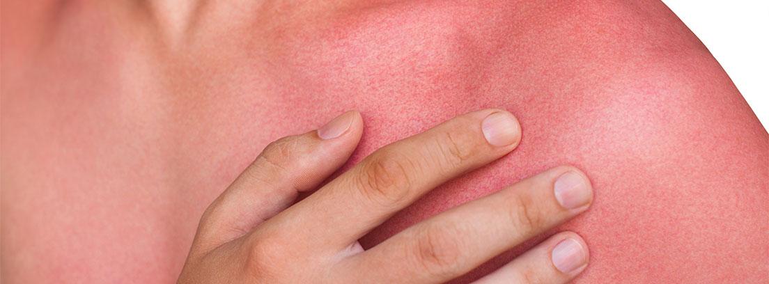 lesiones en la piel herida