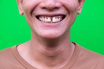 traumatismos dentales - diente desplazado