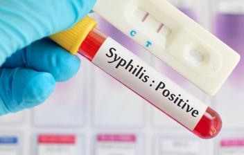 prevencion de enfermedades de transmision sexualidad diapositivas