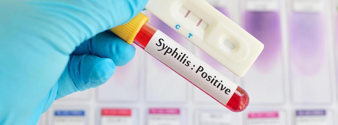 Resultado de imagen para sifilis