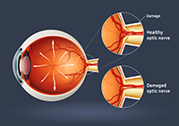 Enfermedades por aparatos. Oftalmología. Glaucoma