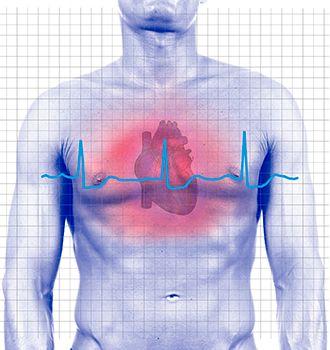 enfermedades cardíacas - infarto agudo de miocardio