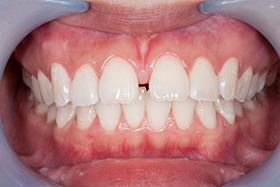 Salud Dental - Diastema
