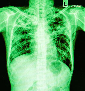radiografía de toráx, neumonía