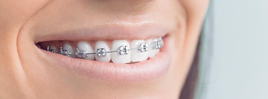 Ortodoncia 191 Cu 225 Ndo Empezar