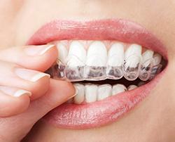 fundas de dientes
