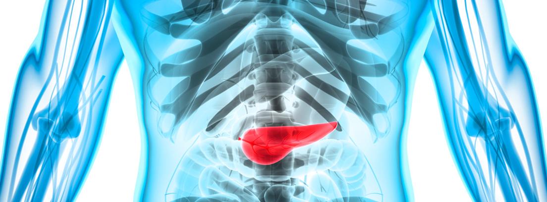 Información pancreatitis trastornos del páncreas - canalSALUD