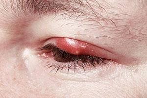 enfermedad del párpado