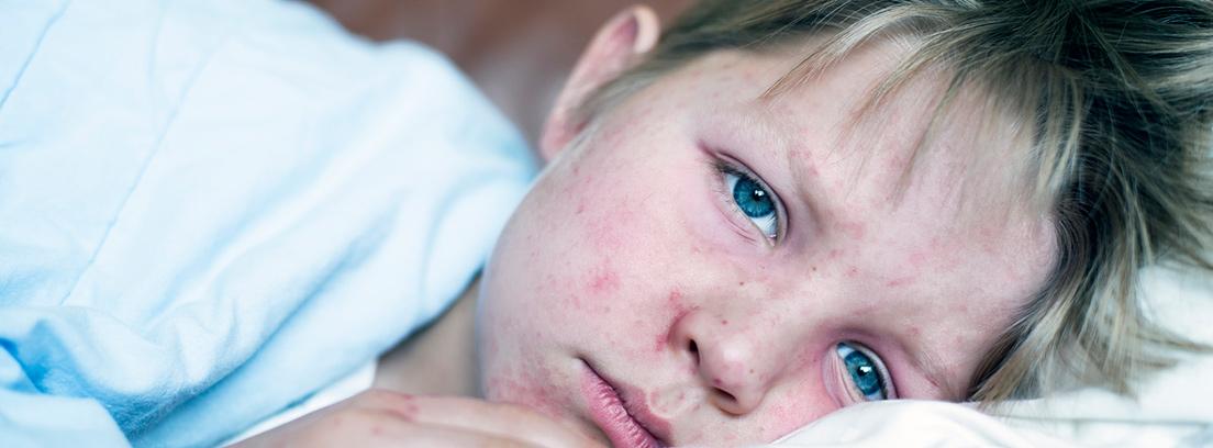 Cuales son las principales causas del sarampion