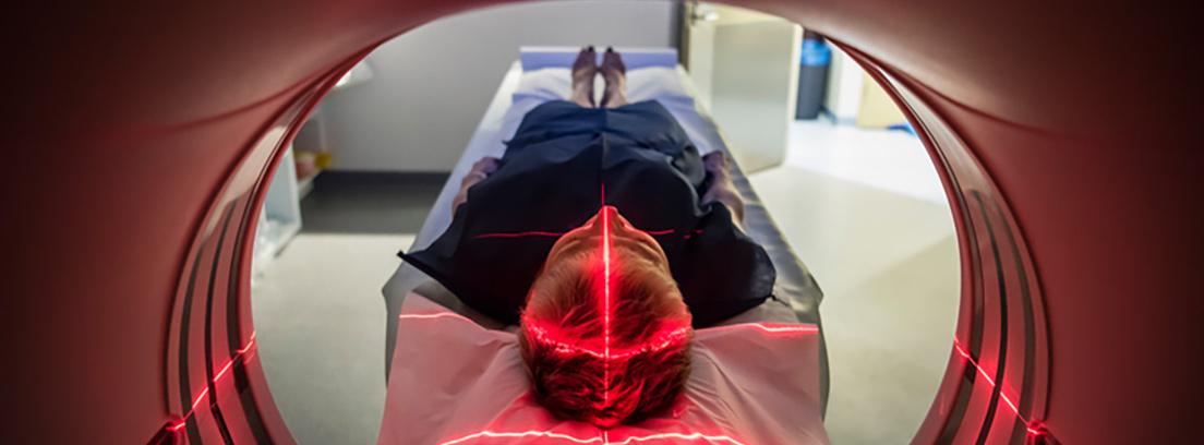 Siete increíbles transformaciones hipertensión craneal
