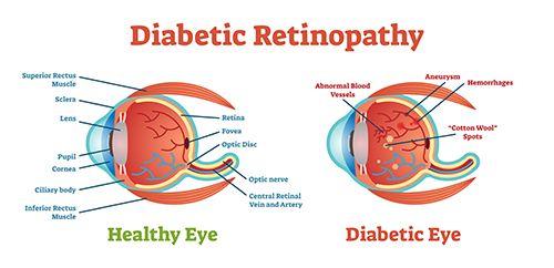 esquema sobre la retinopatia