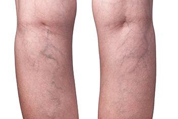 piernas con varices