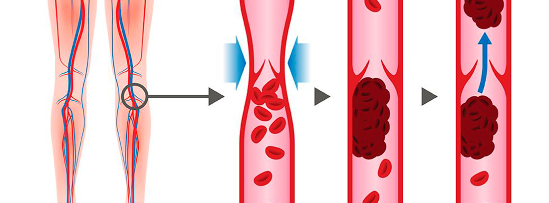 piernas y circulación sanguínea