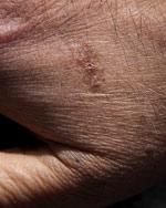 Salud Mayores. Úlceras por presión en personas mayores. Introducción