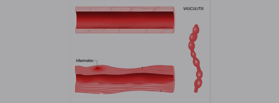 Vasculitis y tipos: dibujo de vasculitis