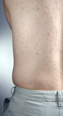Enfermedades por aparatos-Enfermedades dermatológicas-Acné en el adulto