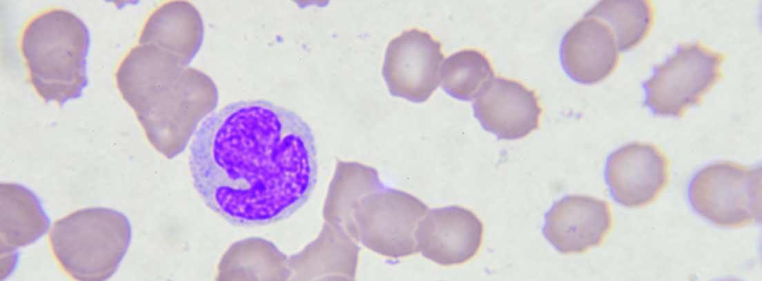 células leucémicas