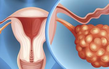 Cáncer de ovario: imagen representando el cáncer de ovario
