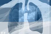 Salud Mayores. Oncología para personas mayores. Cáncer de pulmón