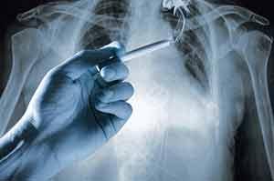 cáncer de pulmón y tabaco