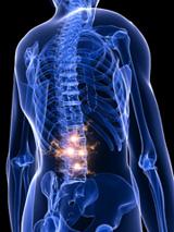 Enfermedades por aparatos. Huesos, articulaciones y músculos. Artritis psoriásica