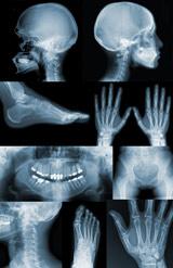 Enfermedades por aparatos. Huesos, articulaciones y músculos. Enfermedad de Paget