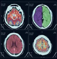 Pruebas Diagnósticas. Pruebas diagnósticas por imágenes. SPECT cerebral