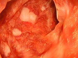 Cribado cáncer de colon