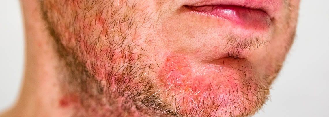 hombre con dermatitis seborreica en la barba
