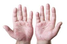 Dermatología-dishidrosis-manos