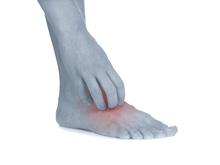 Dermatología-dishidrosis-pie