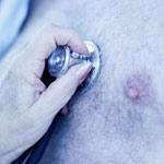 Salud Mayores. Trastornos cardiovasculares en personas mayores. Enfermedad coronaria