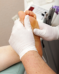 Estudio biomecanico de la marcha - estudio del pie