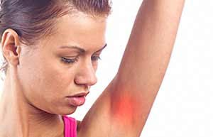 hidradenitis a causa del sudor