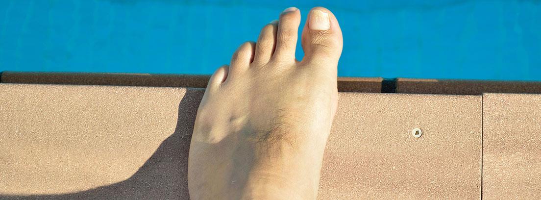 pie con dermatomicosis: hongos