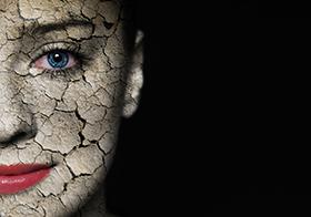 enfermedad infecciosa-lepra