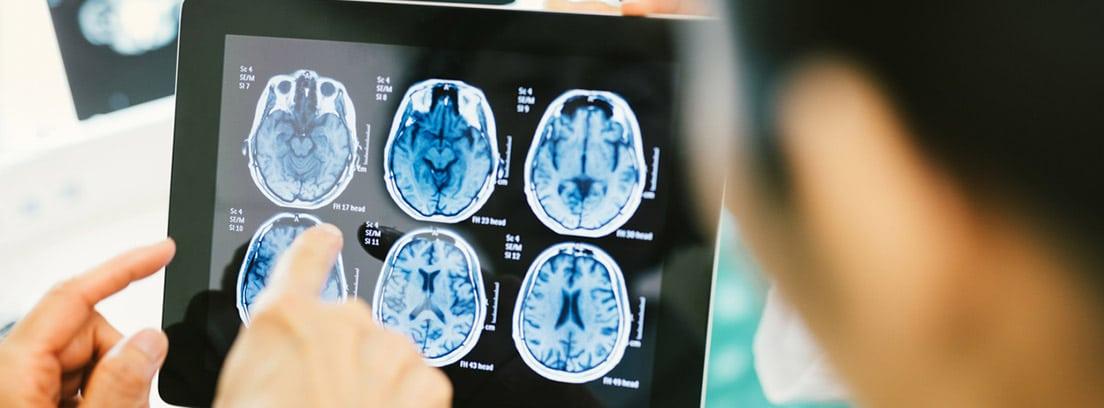 Megaloblastoma, tumor cerebral en niños: resultados de resonancia magnética del cerebro