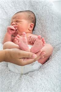 bebé, microcefalia