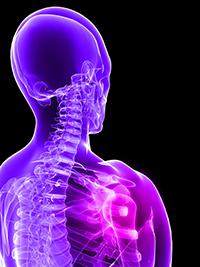 Enfermedades por aparatos. Huesos, articulaciones y músculos. Osteoporosis