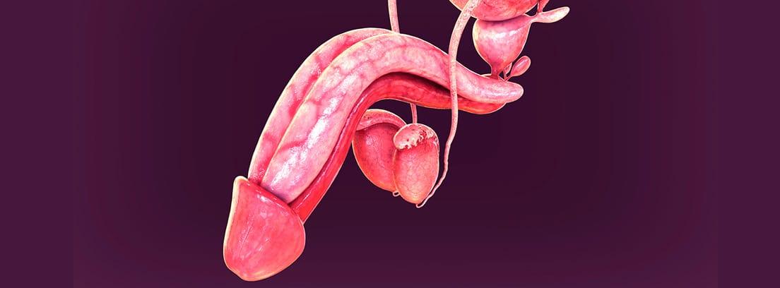 Parafimosis: genitales masculinos