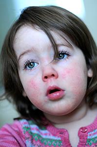 niña con la piel enrojecida por el frio