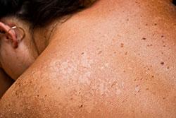 enfermedad-queratosis solares-manchas